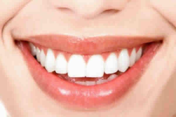 Veja como ter um sorriso mais bonito com o plano dental!